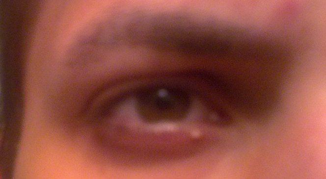 Прыщ в глазу внутри глаза
