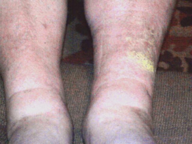 Если не лечить рожистое воспаление ноги в домашних условиях 338