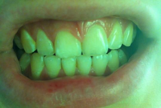 Ломит верхние передние зубы
